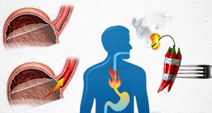 Народные способы лечения изжоги